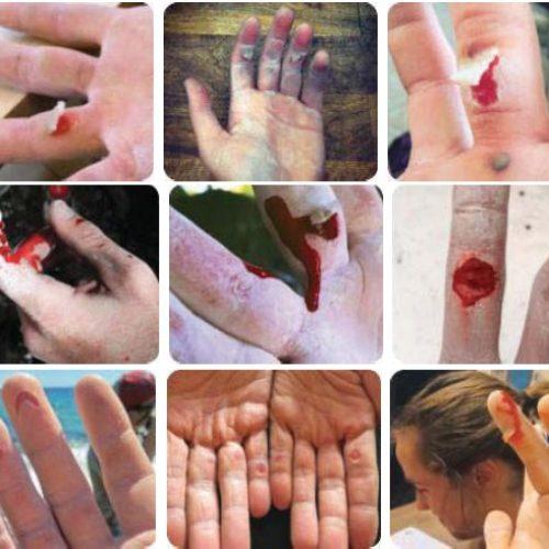 آسیب های پوستی در سنگنوردی